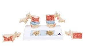 Modèle anatomique ostéoporose ST-ATM 45