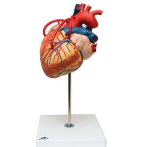 Affichage anatomique modèle bypass coeur ST-ATM 74